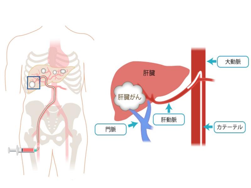 【耳学】日本人だけが知らない<日本の医療>最前線。: ichigen ...